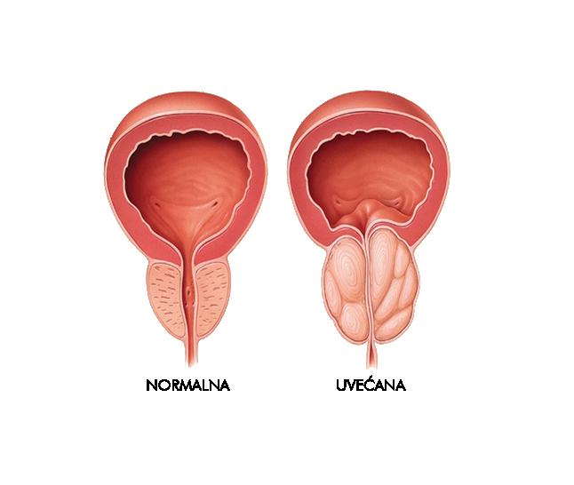 normalna-uvecana-prostata